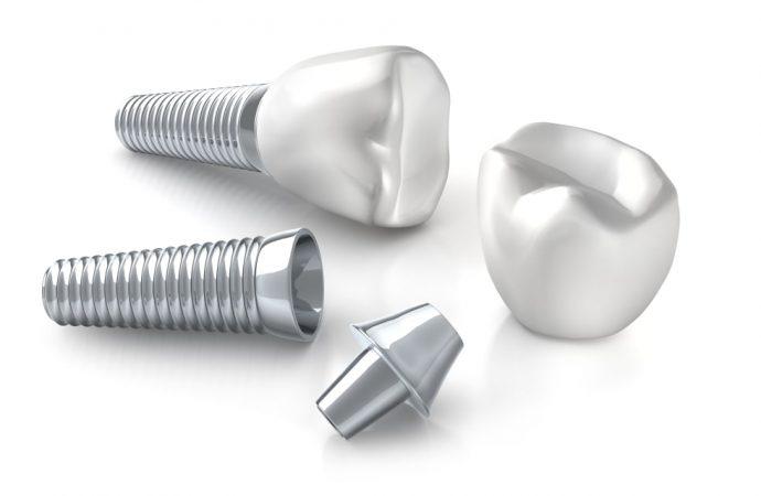 Implanty zębowe – najczęściej zadawane pytania