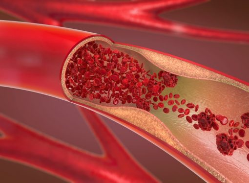 Zakrzepica – przyczyny, objawy, leczenie