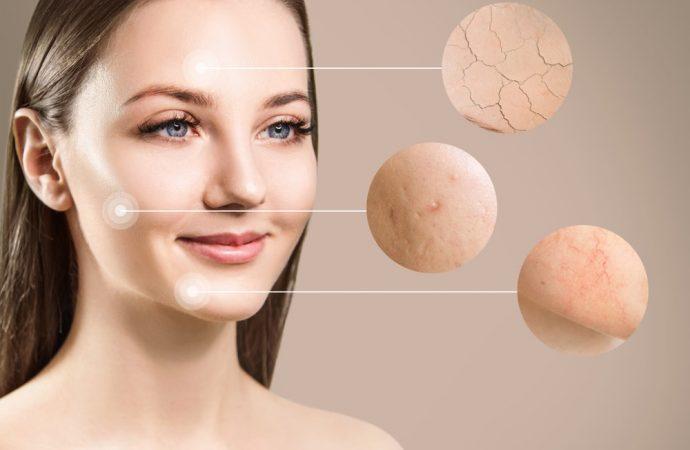 Terapia laserowa w leczeniu trądziku różowatego