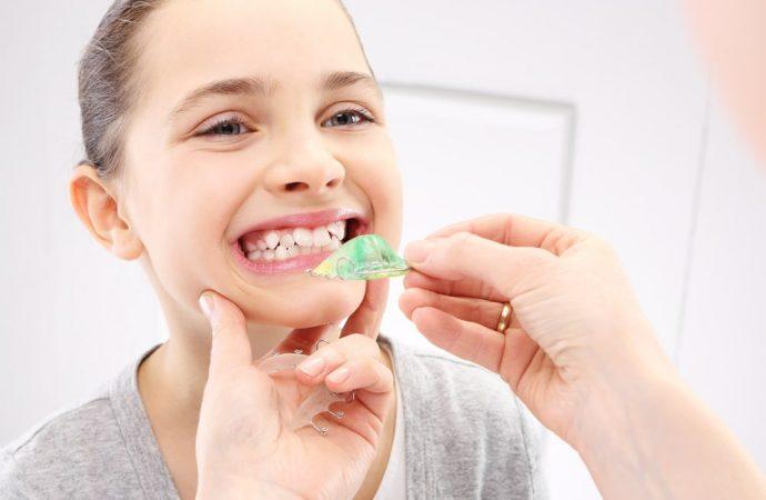Jak powstają wady zgryzu i krzywe zęby? – poradnik